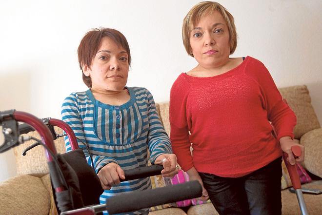 300 personas padecen de síndrome de morquío