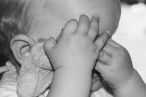 Advierte Ssa más casos de microcefalia