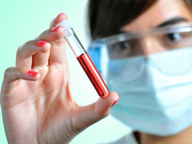 Análisis de sangre de Angle detecta cáncer de ovario