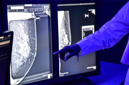 Así trabaja la UNAM en la detección y el tratamiento del cáncer de mama