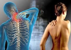 Avanzan en medicamento para Esclerosis