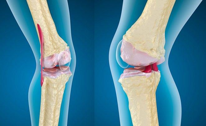 Baja ingesta de calcio aumenta riesgo de osteoporosis y fracturas