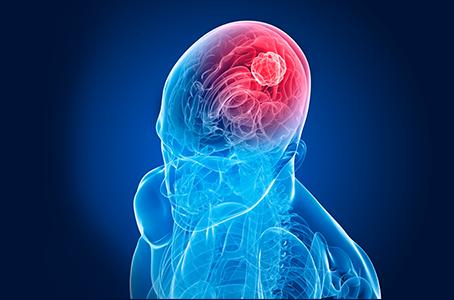 Cáncer cerebral, combatido con campos magnéticos