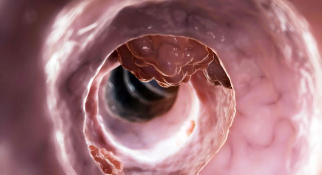 Cáncer de colon es el cuarto más frecuente en México