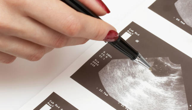 Cáncer de ovario es de los más agresivos