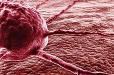 Descubren una proteína que proteje contra el hígado graso