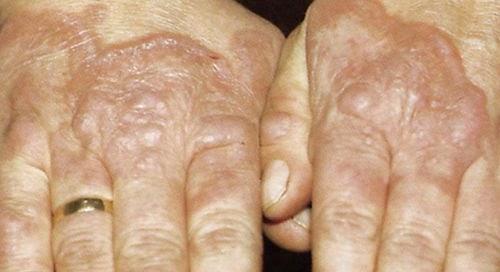 Diabéticos no deben descuidar su piel