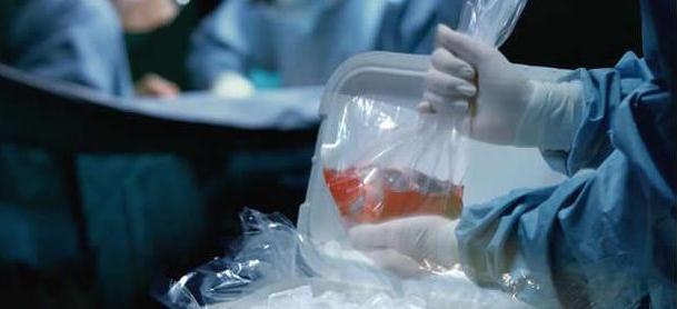 ¡En pañales! México en donación de órganos