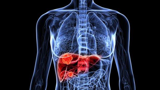 Enfermedad hepática, una de las principales causas de muerte en México