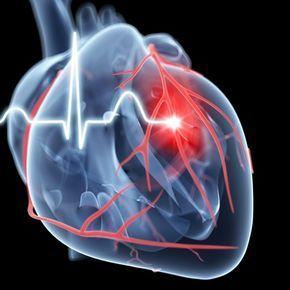 Esta es la reacción verdadera del corazón ante un infarto