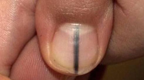 Fue a arreglarse las uñas y le detectaron cáncer