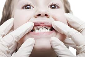 Ignoran salud dental infantil