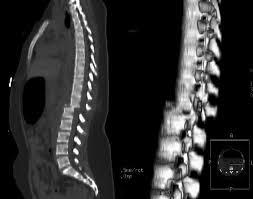Iinvestigan lesiones medulares