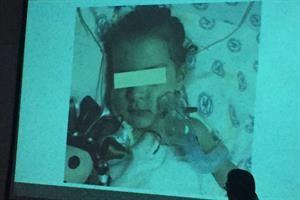Implantan corazón artificial a niña