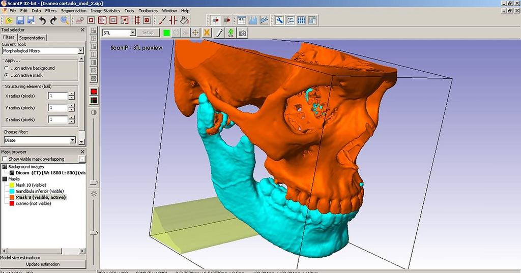 IPN crea prótesis de mandíbula a través de industria inteligente