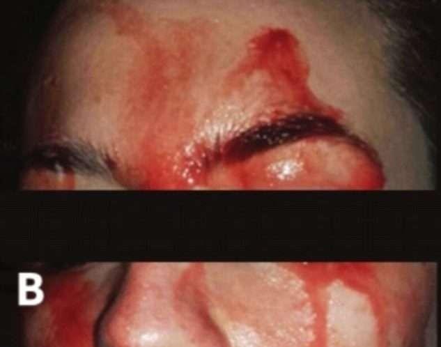 Joven italiana suda sangre por las manos y cara