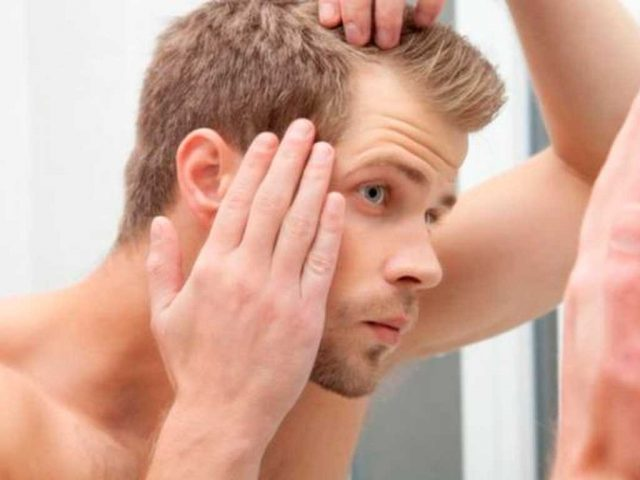La mitad de hombres jóvenes pierden cabello por estrés y hormonas