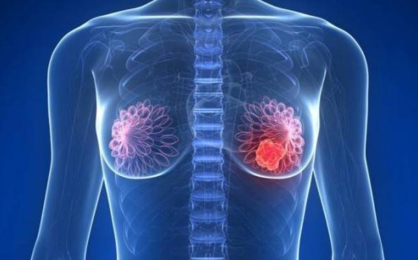 Nuevos tratamientos de cáncer de mama, menos agresivos y más eficientes
