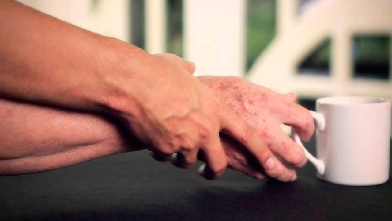 Pacientes con Parkinson logran  calidad de vida con tratamiento integral