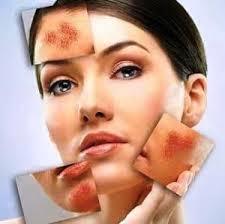 Psicodermis… emociones que afectan la piel