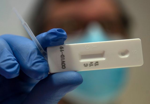 Se propagó Coronavirus rápidamente a fines de 2019: UCL