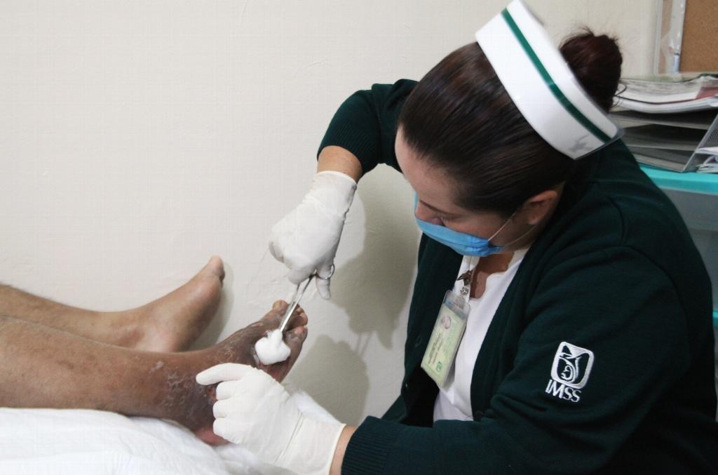 Seguro Social atiende heridas crónicas de diabéticos con nueva tecnología