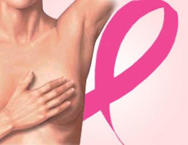 Seguros para cáncer de mama, acotados