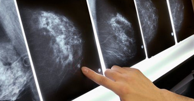 Sin seguimiento 60% de mujeres con cáncer