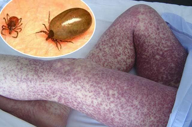 Son ya 14 muertos por rickettsia en BC