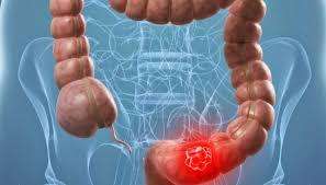 Sube cáncer de colon en menores de 50 años