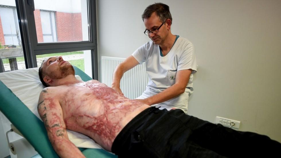Trasplante salva a sujeto con 95% de piel quemada