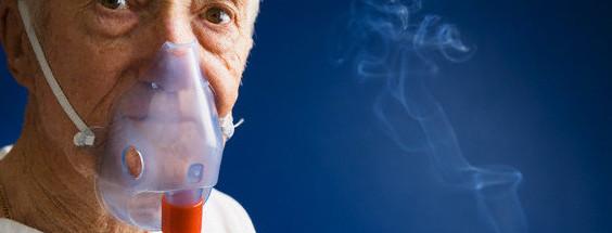 EPOC dentro de las 10 causas de muerte en el IMSS