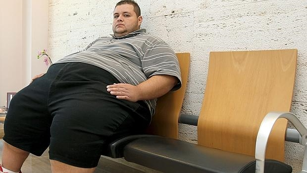 Obesidad, más letal para los hombres que para las mujeres