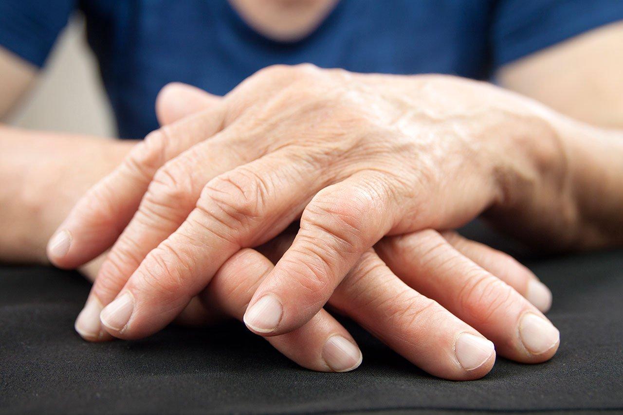 Padecen artritis reumatoide 1.9 millones de mexicanos