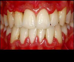 Relaciona IMSS periodontitis y aborto
