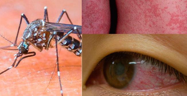 """Se expande Zika """"explosivamente"""" en AL: OMS"""